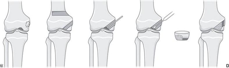 Osteocondritis disecante de los cóndilos femorales