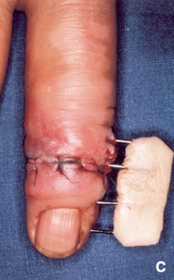 infeccion tendon mano