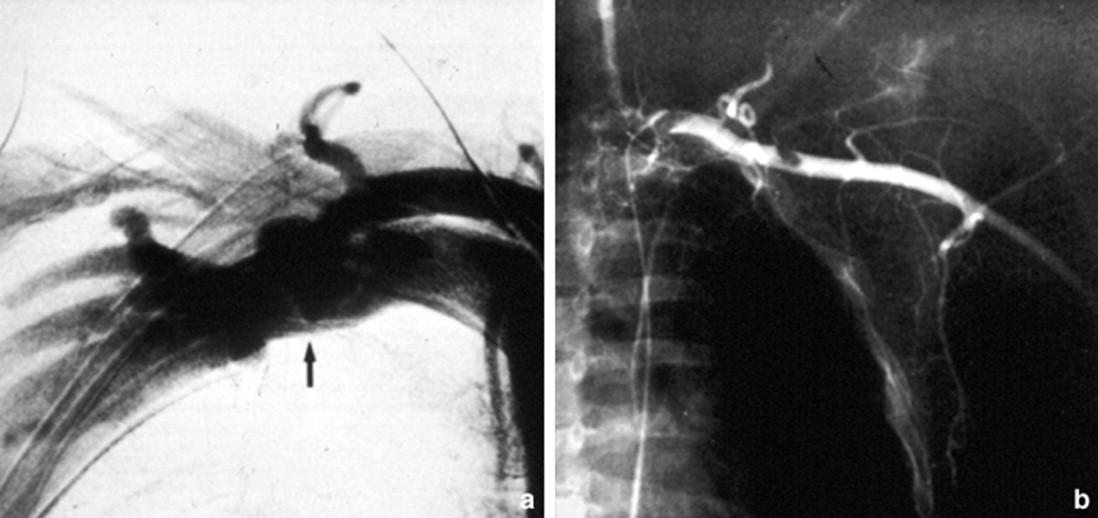 Complicaciones vasculares en ortopedia y traumatología - ScienceDirect