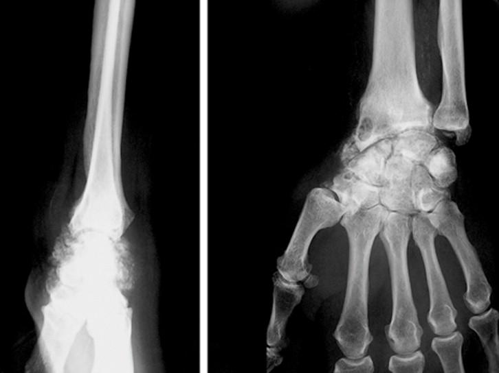 Artrosis de muneca pdf