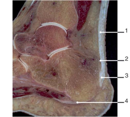 Tendón normal: anatomía y fisiología - ScienceDirect