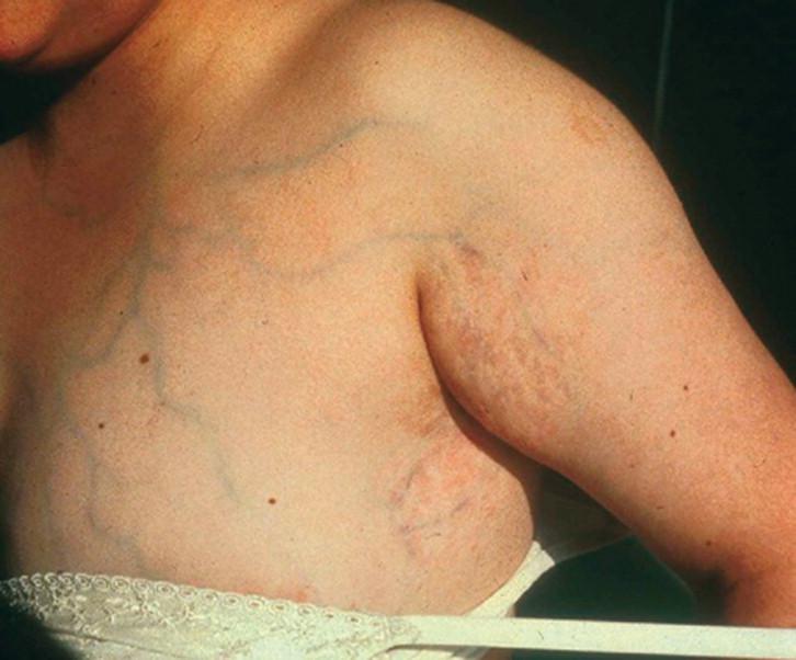 enfermedad de mondor más condición síntomas de diabetes