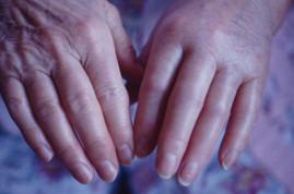 Algodistrofia: síndrome doloroso regional complejo de tipo I ...