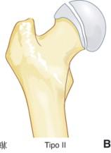 Fractura de cabeza del fémur