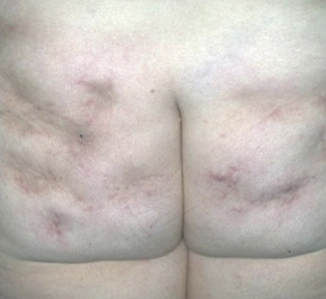 Sindrome de sjogren y perdida de peso repentina