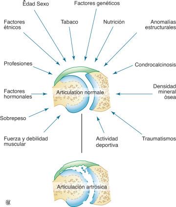 fisiopatologia de osteoartritis de manos