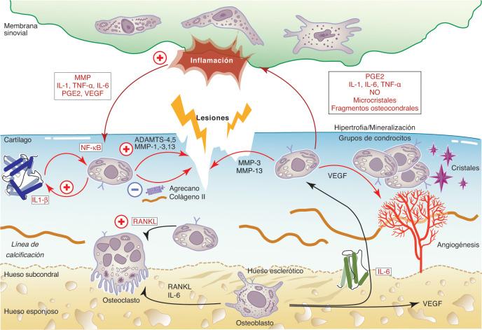 diabetes de glucosilación de appareil de golgi