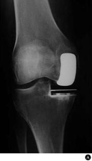 Rehabilitacion Y Artroplastia Total De Rodilla Sciencedirect