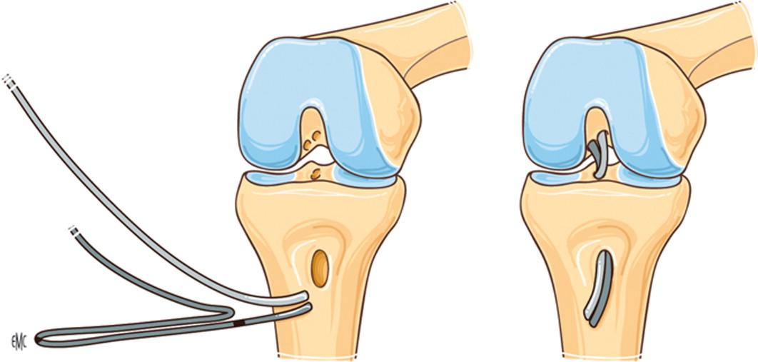 Rehabilitación postoperatoria de los injertos del ligamento cruzado ...