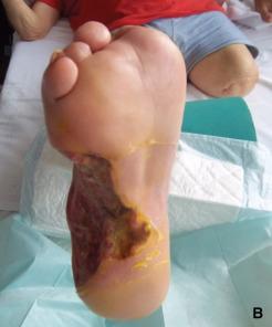 amputaciones del antepié y diabetes