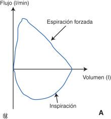Vibración en aleatoria pierna sensación de la