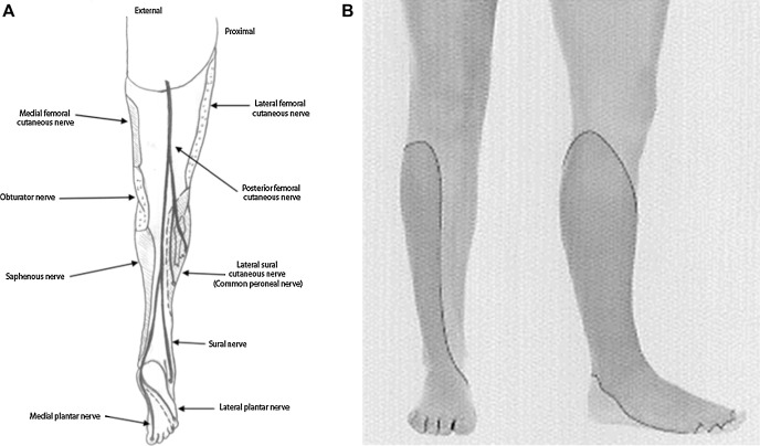 Management of neuropathic pain after knee surgery