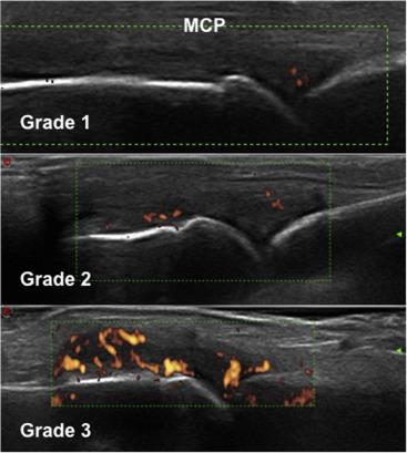 Ultrasound And Follow Up Of Rheumatoid Arthritis Sciencedirect