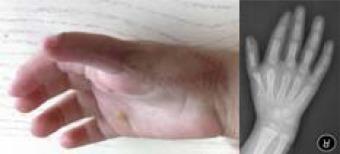 Hypoplastic thumb treatment