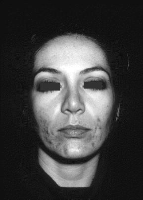"""Lacné et les """"folliculites"""" du visage sont présentes chez."""