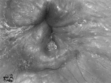 Épidémiologie des lésions anales (fissure et thrombose hémorroïdaire ...