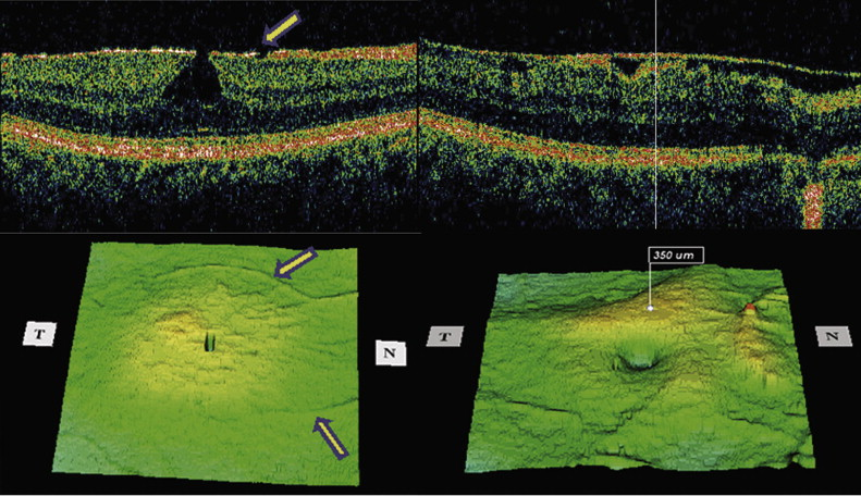 Top Right Focal ERM With Wide Cleavage Plane Between The Membrane And Retina Nasally Bottom Corresponding 3D Surface Thickness Map Shows