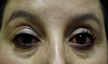Medical Management Of Thyroid Eye Disease Sciencedirect