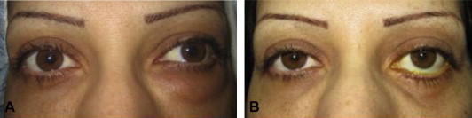 Lower eyelid swelling as a late complication of Bio-Alcamid filler