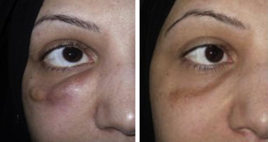 Lower eyelid swelling as a late complication of Bio-Alcamid