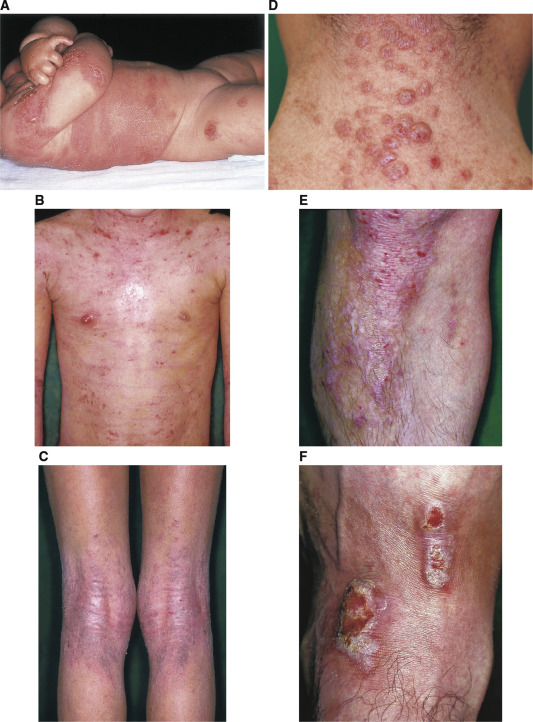 Japanese guidelines for atopic dermatitis 2017 - ScienceDirect
