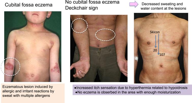 Kết quả hình ảnh cho hyperhidrosis and atopic dermatitis