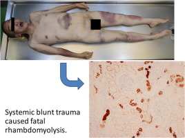 A Rare Autopsy Case Of Traumatic Rhabdomyolysis Associated With Intermittent Assault Sciencedirect