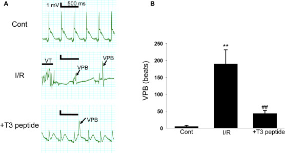 Protective effect of T3 peptide, an active fragment of