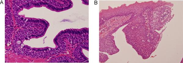 Inverted ductal papilloma salivary gland - Inverted ductal papilloma