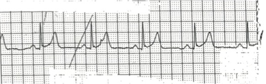 Incomplete atrioventricular dissociation and isorhythmic