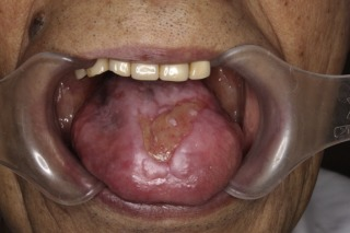 A case of papilloma associated with topical tacrolimus