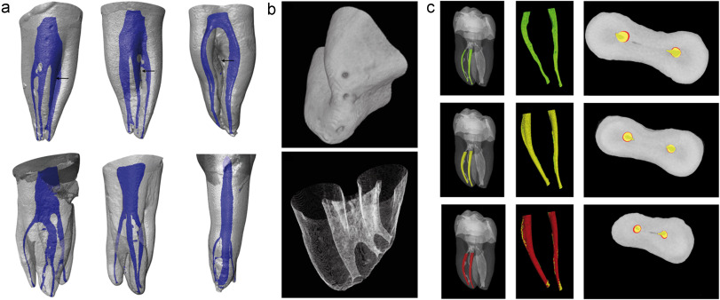 Three Dimensional Imaging Of Internal Tooth Structures Applications