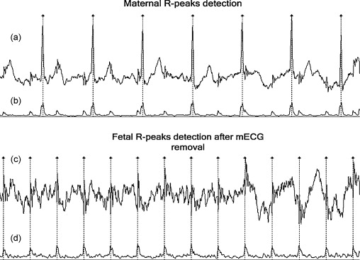 Single-lead fetal electrocardiogram estimation by means of combining