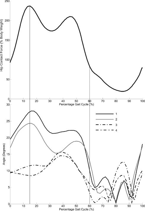 The Effect Of Motion Patterns On Edge Loading Of Metal On Metal Hip