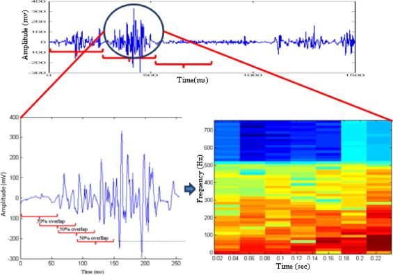 High energy spectrogram with integrated prior knowledge for EMG