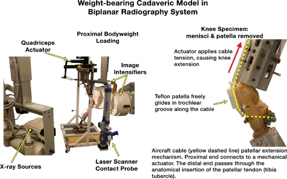 Validation of a method for combining biplanar radiography