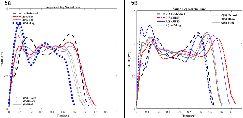 Foot trajectories and loading rates in a transfemoral