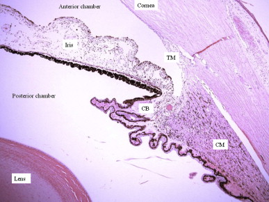 The vast complexity of primary open angle glaucoma: Disease