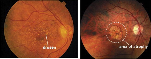 Progress On Retinal Image Analysis For Age Related Macular Degeneration Sciencedirect