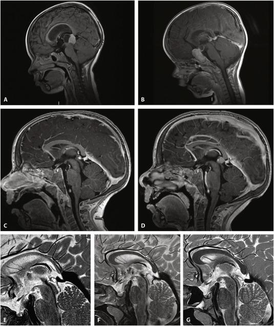 Conservative management of retinoblastoma: Challenging