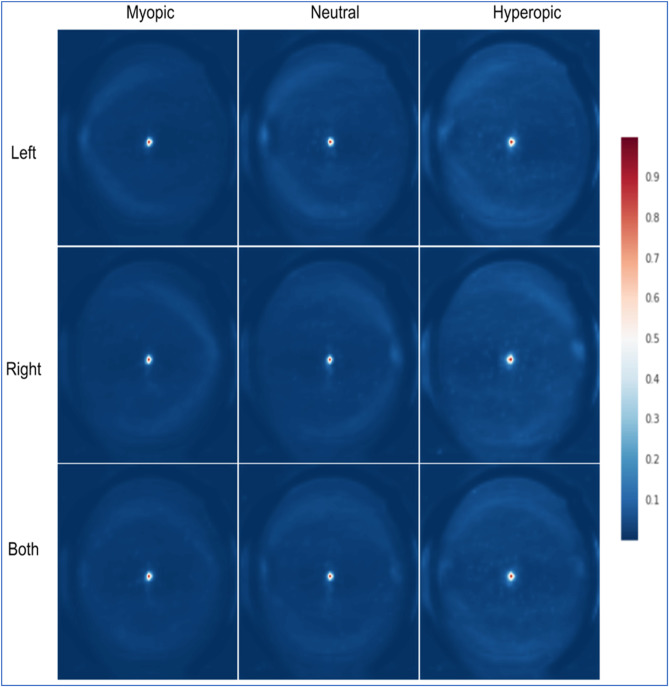 Deep learning in ophthalmology: The technical and clinical