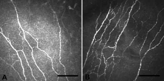 Corneal nerves in health and disease - ScienceDirect