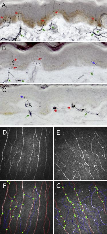 Small fiber neuropathy in Parkinson's disease: A clinical