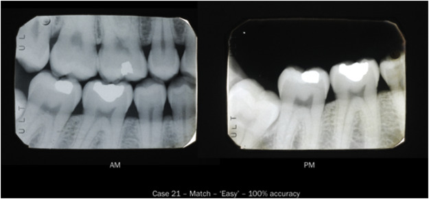 Validation Studies In Forensic Odontology Part 1 Accuracy Of Radiographic Matching Sciencedirect