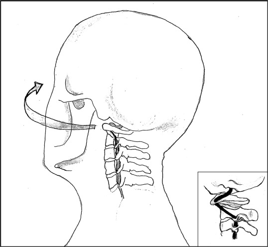 Cervical Arterial Dissection An Overview And Implications For