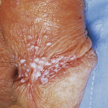 Genital warts photo