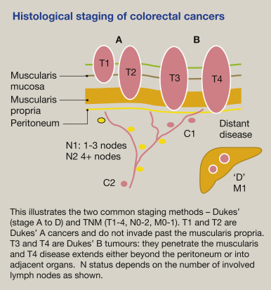 Colorectal Cancer Features And Investigation Sciencedirect
