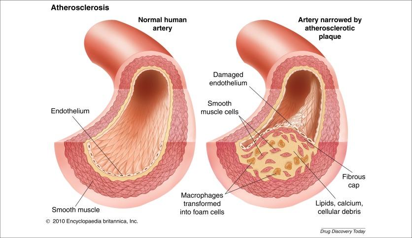 Excessive intimal hyperplasia in human coronary arteries