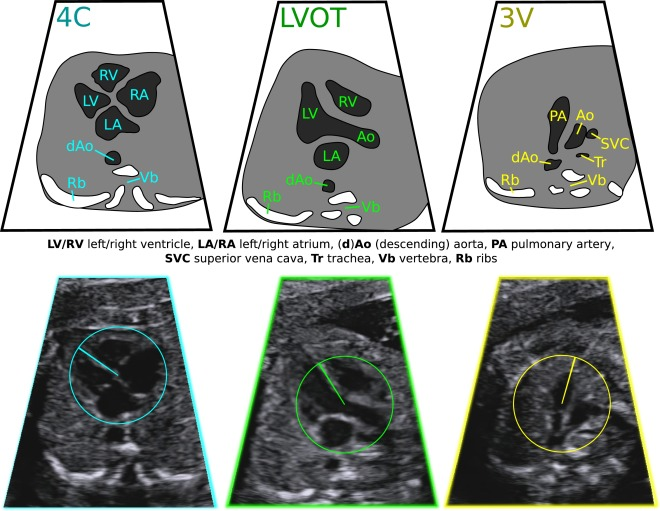 Automated annotation and quantitative description of ultrasound ...