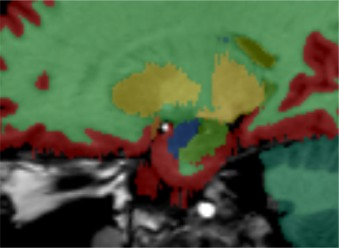 Tolomeo Stehle rapid fully automatic segmentation of subcortical brain structures